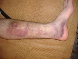 Dave\'s leg